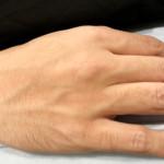 手指の脱毛
